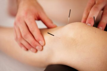 Acupuncture / Dry needling